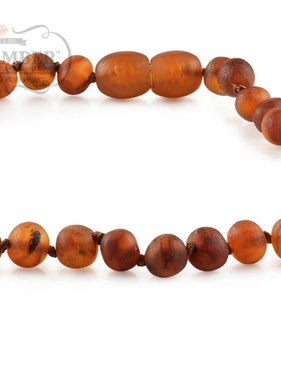 R.B. Amber Baltic Amber Necklace: Raw Cognac / 12-13""