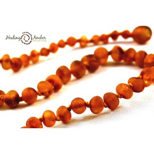 Healing Amber Baltic Amber Necklace - 11 and 13 inch Matte