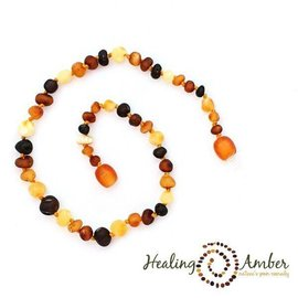 Healing Amber Baltic Amber Necklace - Teen & Adult 15