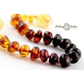 Healing Amber Baltic Amber Necklace - 11 and 13 inch Shiny