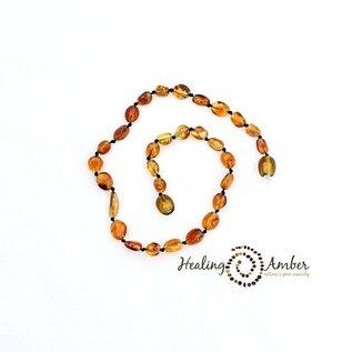 Healing Amber Baltic Amber Bracelet - Teen & Adult Stretch