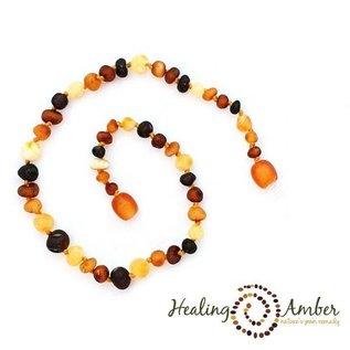 Healing Amber Baltic Amber Bracelet - Teen & Adult Clasp