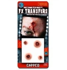 TINSLEY PROTHESE FX TRANSFERS -CAPPED