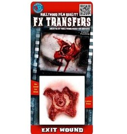 TINSLEY PROTHESE FX TRANSFERS -EXIT WOUND