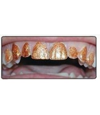 Fan-Teeth - Gypsy Gold by NuDent LLC (C2)