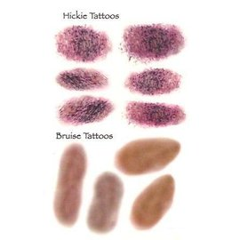 Hickie/Bruises Temporary Tattoos by Johnson And Mayer