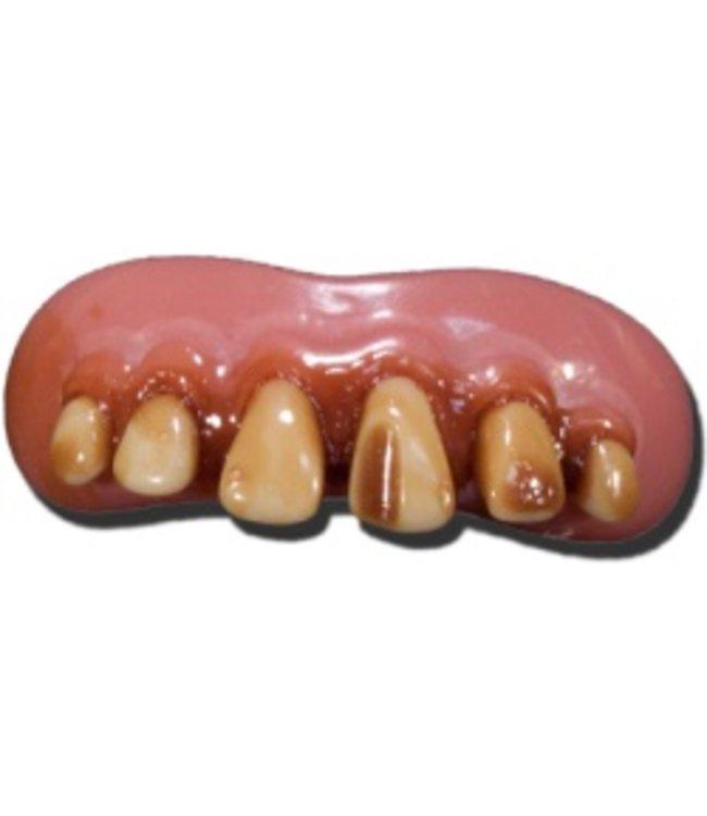 Billy Bob Products Billy Bob Teeth - Caveman With Cavity (C2)