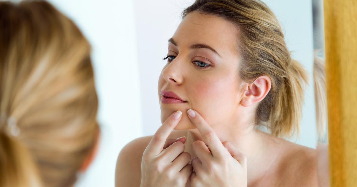 Le guide du débutant sur le traitement de l'acné : les meilleurs ingrédients anti-acné