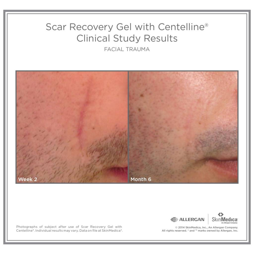 SkinMedica® Scar Recovery Gel Scar Recovery Gel with Centelline