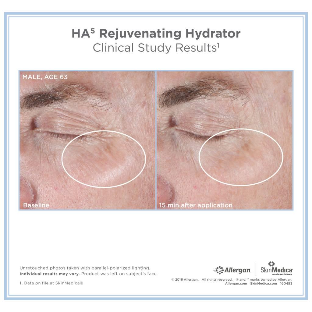 SkinMedica® HA5 Rejuvenating Hydrator