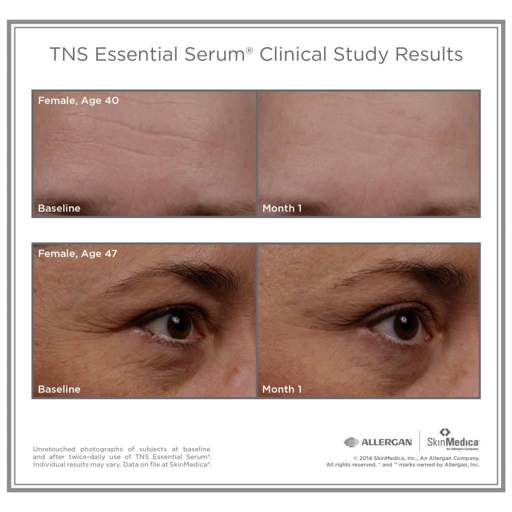 SkinMedica® TNS Essential Serum