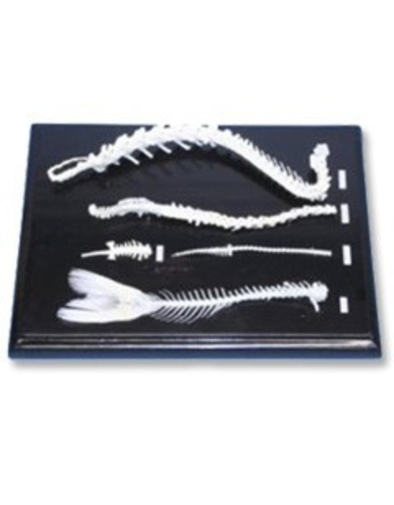 Just Sculpt Spinal Skeleton Comparison