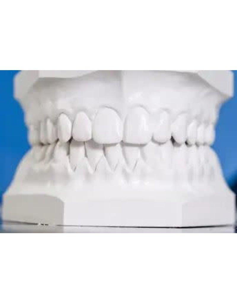 USG Dental Impression Plaster 50lb Bag
