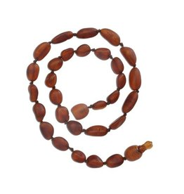 Cherished Moments Baltic Amber Unpolished Beads - Dark Cognac, Medium
