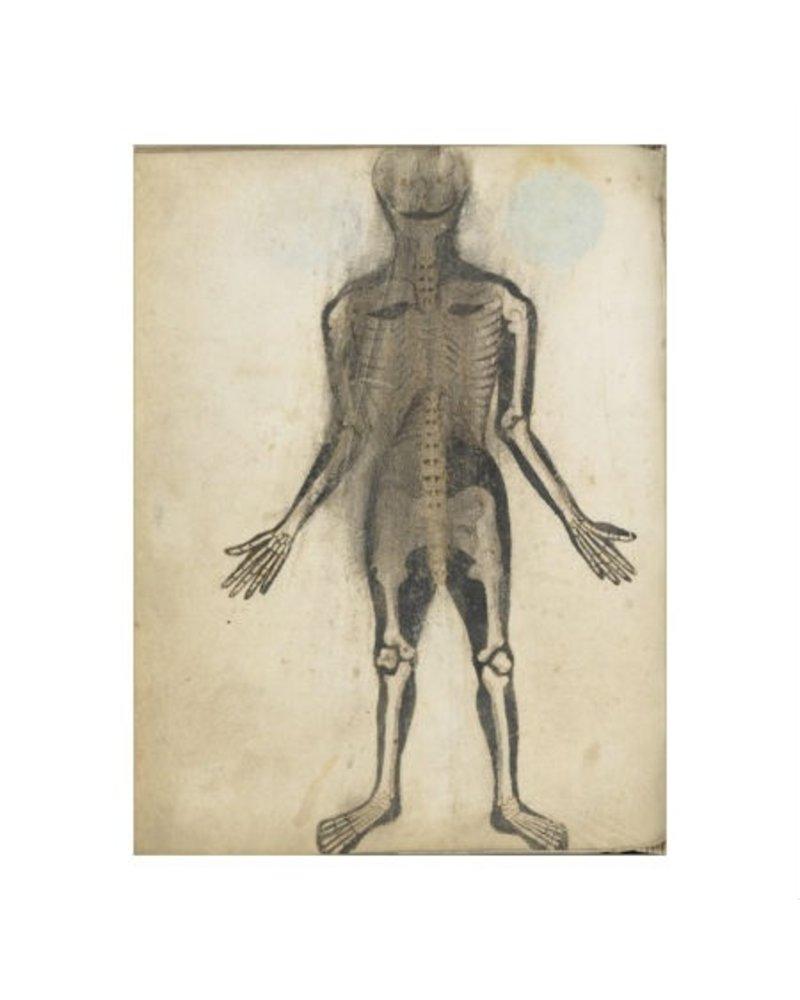 Watson & Co Anatomical Skeleton Front Patent Sign 12x16