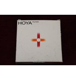 Hoya 72mm Soft Spot Filter