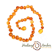 "Healing Amber Healing Amber 11"" Necklace Circle Raw"
