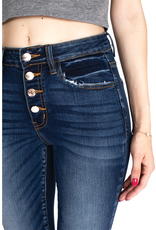 The Trending Button Fly Dark Wash Skinny