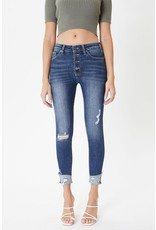 The Martha Distressed Button Fly Skinny