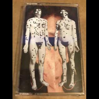 Interracial Sex & Unexamine - Vomit A River CS