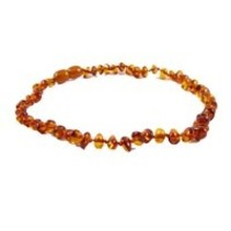 "Cognac Baroque Polished Baltic Amber Necklace (12-22"")"