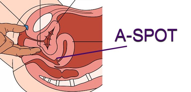 A-spot diagram