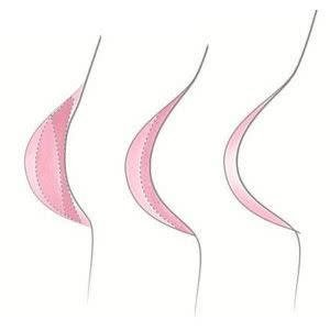 Trulife Trulife Breast Form Recover Shell 822