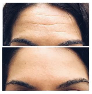 Microneedling front