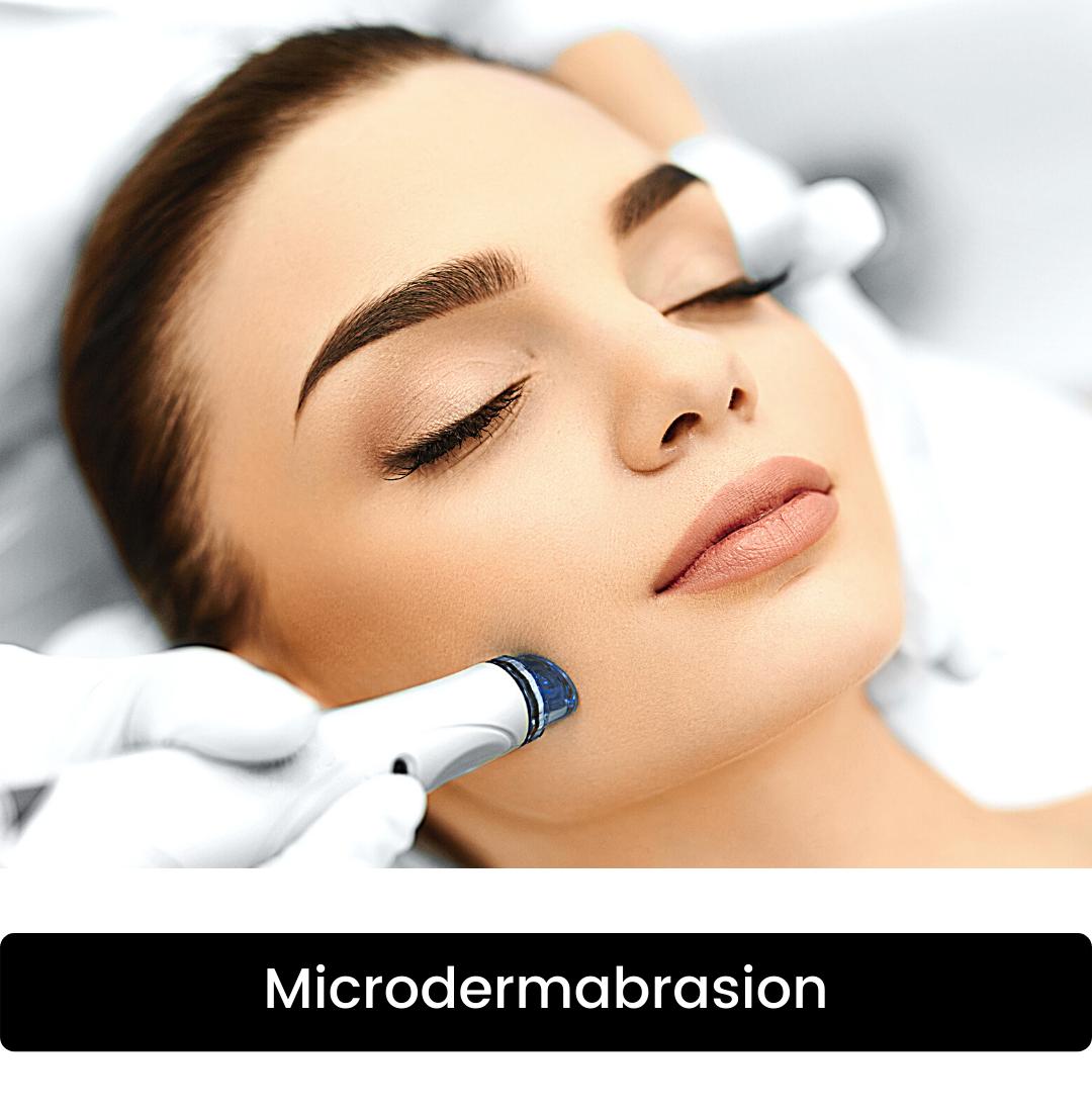 Microdermabrasion Mirage