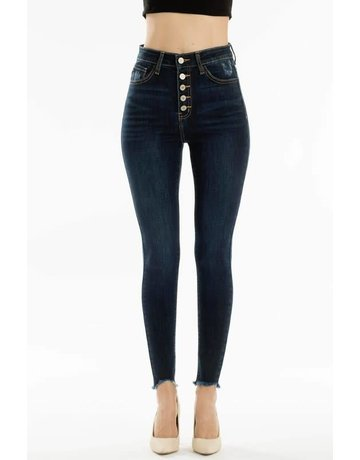 High Rise 5 Button Frayed Ankle Skinny