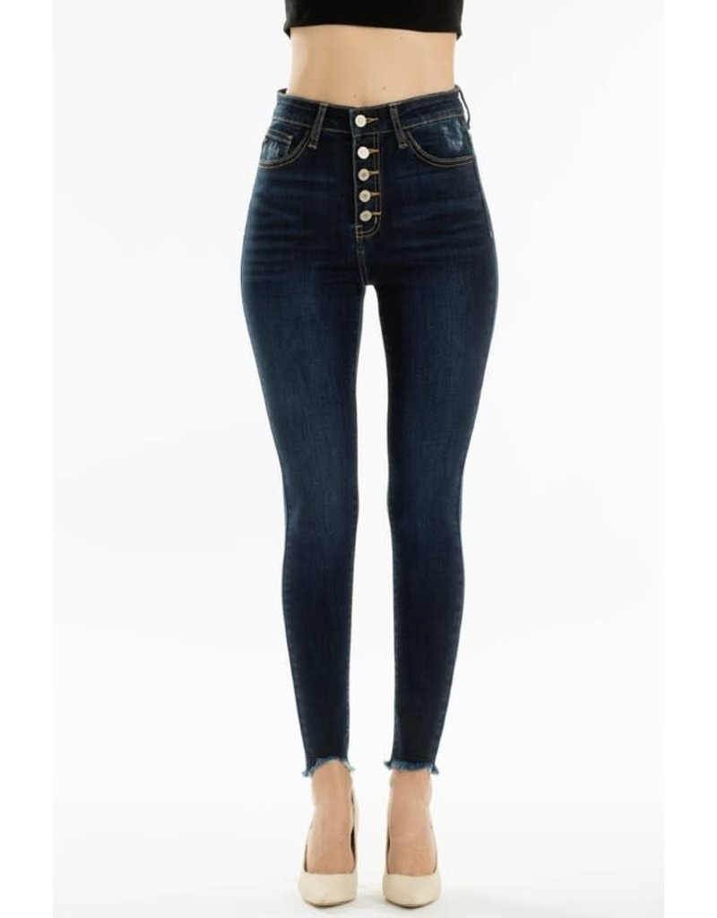 High Rise 5 Button Frayed Ankle Skinny - 3 colors