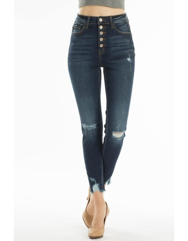 High Rise 5 Button Distressed Knee