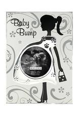5324 BABY BUMP SONOGRAM