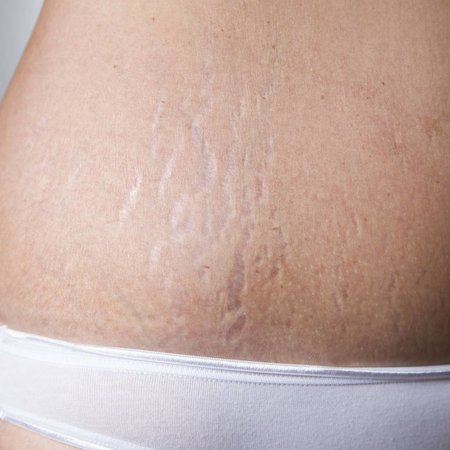 Anti-Stretch Marks Kit