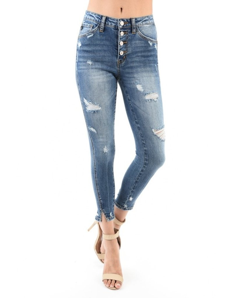 Kancan Exposed front button super skinny