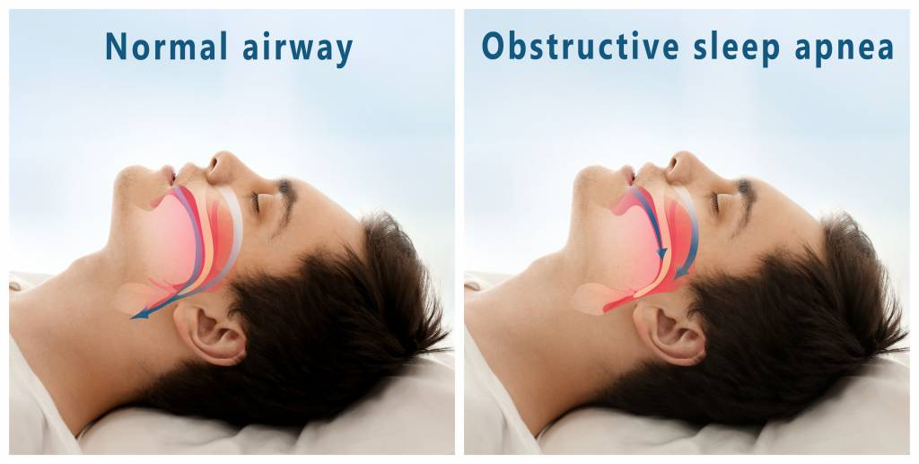 Sleep Apnea Machines | The Benefits of Using the Luna CPAP