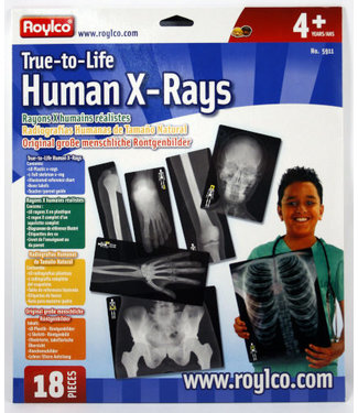 Rolyco True to Life Human X-Rays® 18 pcs