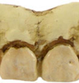 Billy Bob Teeth - Skeleton Teeth