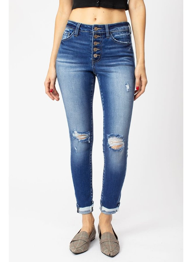 LAURA HIGH RISE BUTTON DOWN ANKLE SKINNY