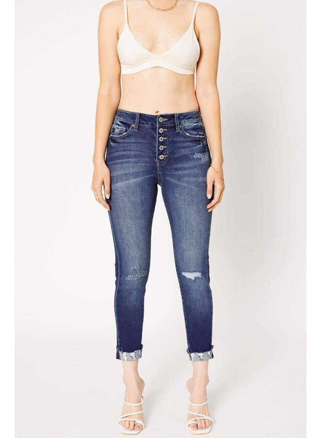 MIRANDA HIGH RISE BUTTON FLY SKINNYS W/ DISTRESSED ANKLE