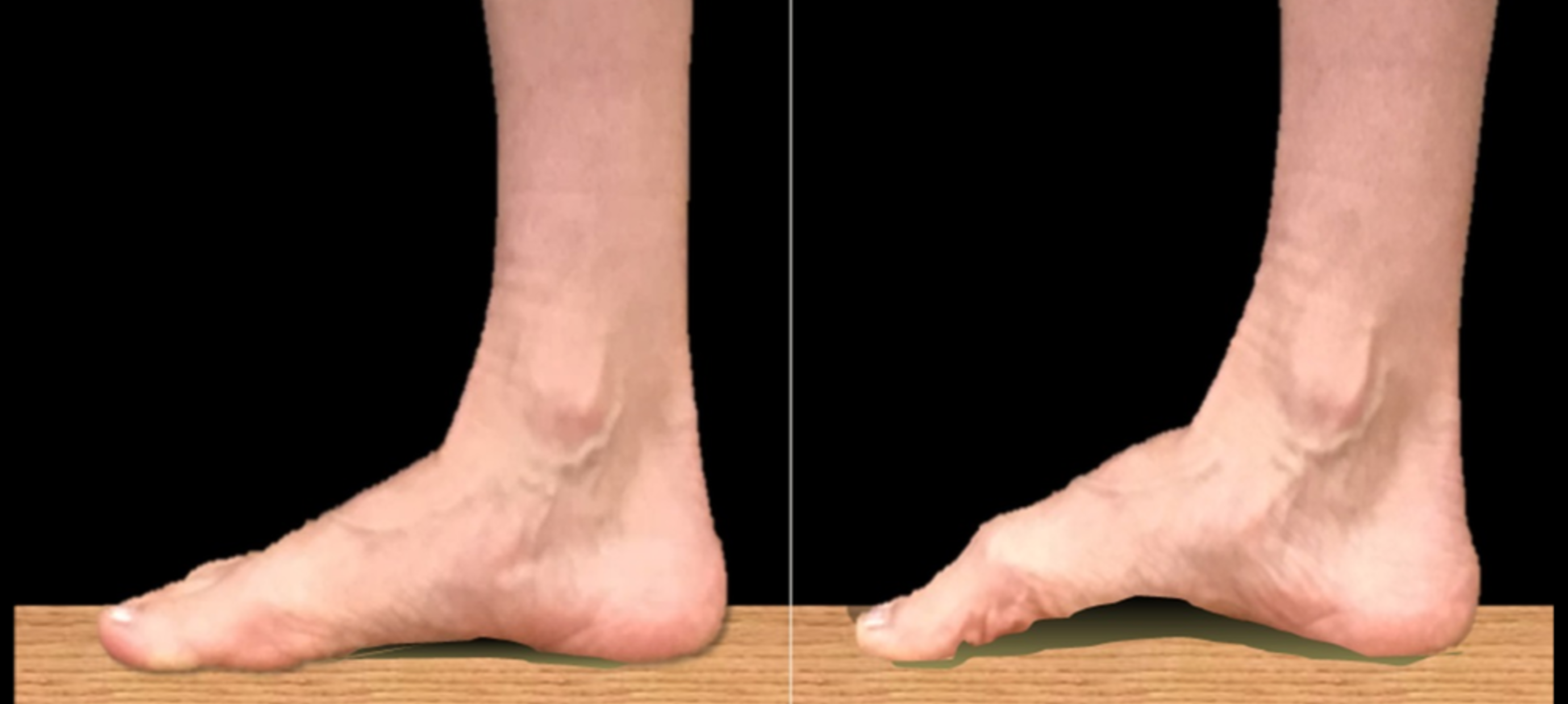 Foot Strength for Walkers and Runners