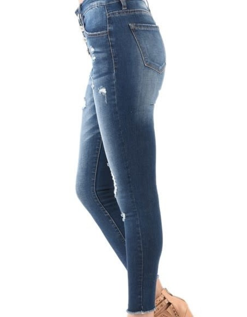 Button Fly slight distressed ankle skinny jeans