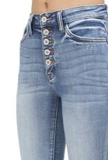 High Waist 5 button distressed knee
