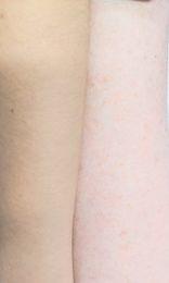 Yellow undertone skin on left, red undertone on right