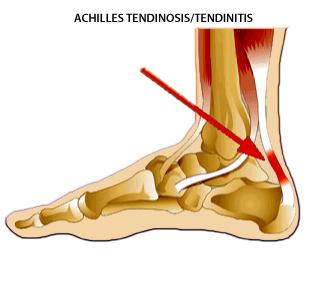 achilles-tendinitis.jpg