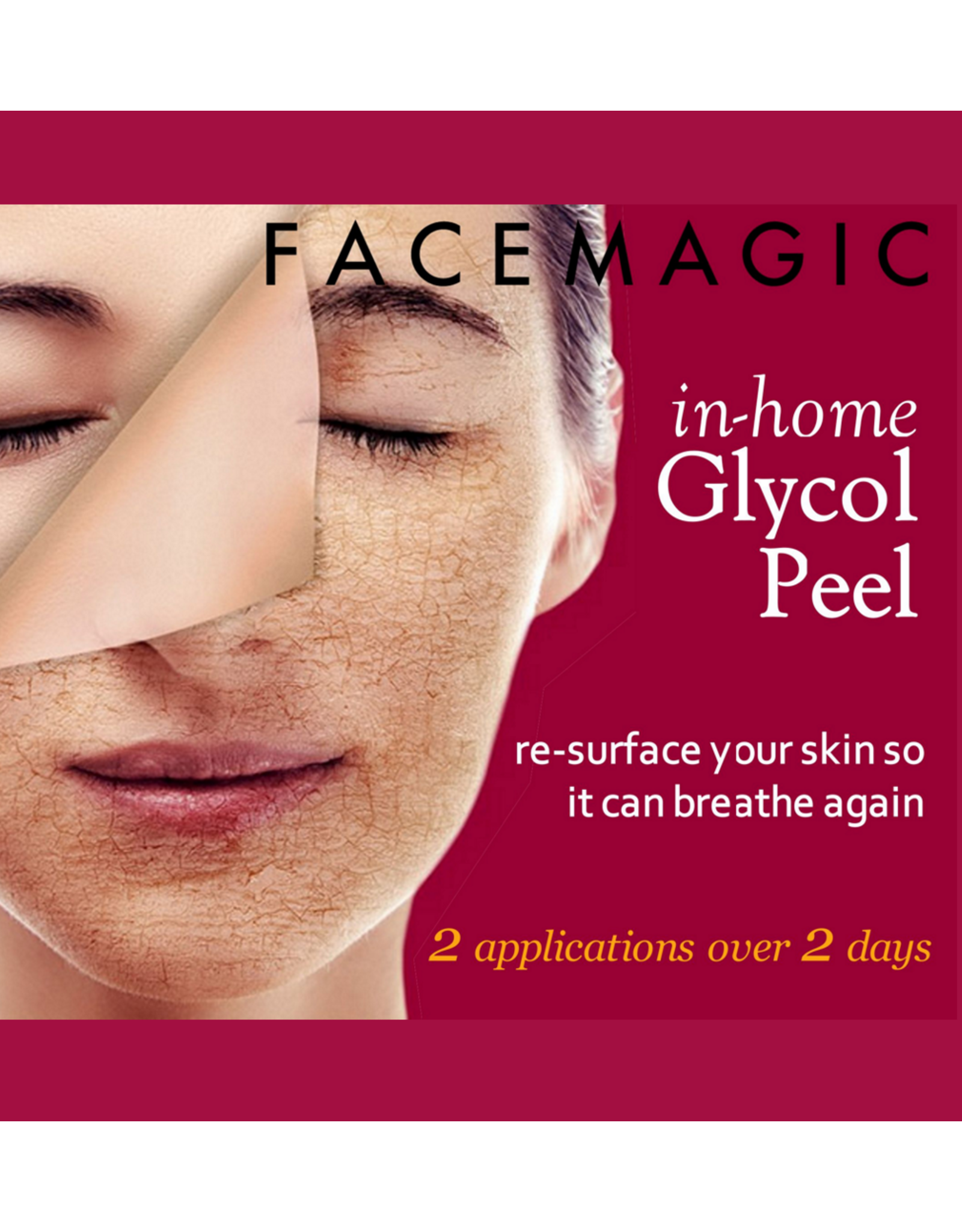 At Home Glycol Peel Kit
