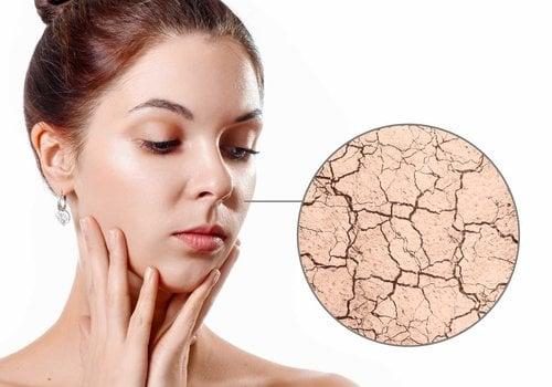 Dehydrated Skin Care