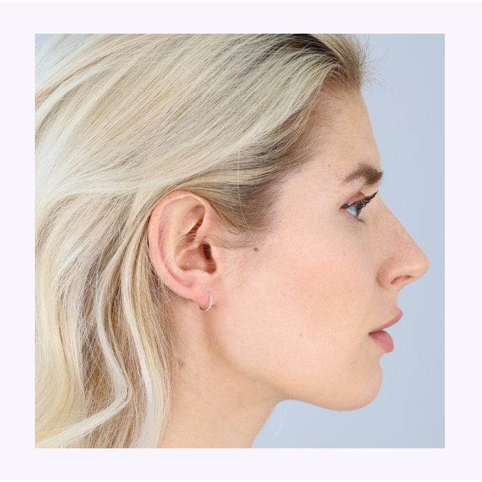 Boucles d'oreilles Raquel 8mm Pilgrim