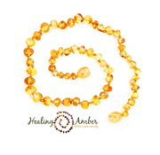 "Healing Amber Healing Amber 11"" Necklace Circle"