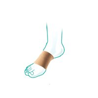 OppO Oppo Arch Bandage